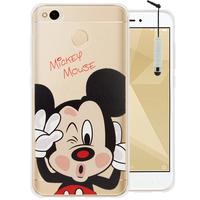 "Xiaomi Redmi 4X 5.0"": Coque Housse silicone TPU Transparente Ultra-Fine Dessin animé jolie + mini Stylet - Mickey Mouse"