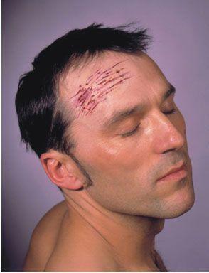 Cicatrice Latex Éraflures