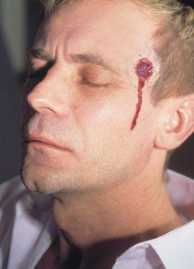 Cicatrice Latex Impact de Balle