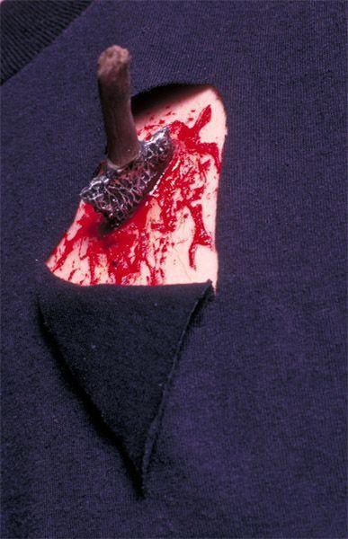 Cicatrice Flèche Brisée