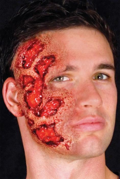 Cicatrice brulure
