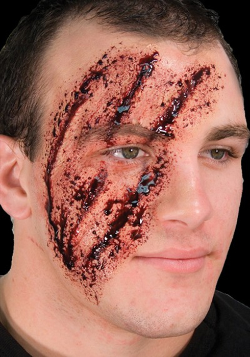 Cicatrice écorché